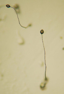 408px-Dictyostelium_Fruiting_Bodies